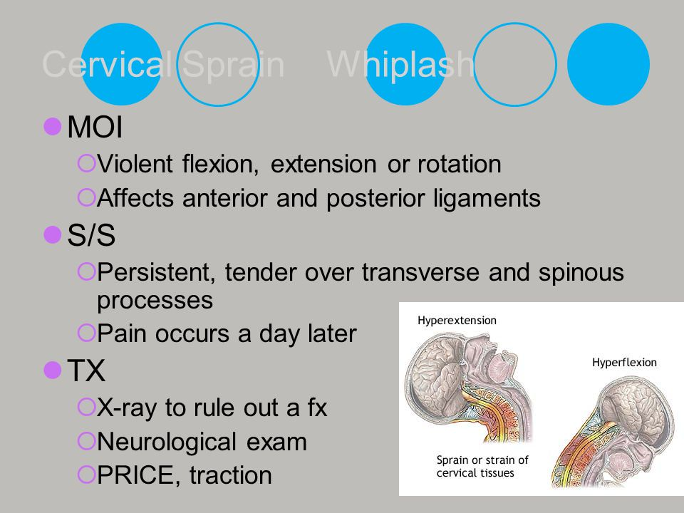 Cervical Sprain Whiplash