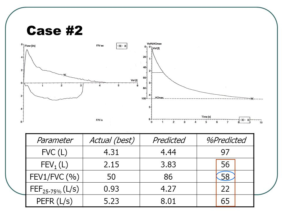 Case #2 Parameter Actual (best) Predicted %Predicted FVC (L) 4.31 4.44