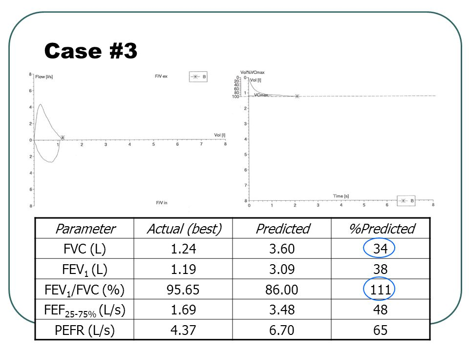 Case #3 Parameter Actual (best) Predicted %Predicted FVC (L) 1.24 3.60