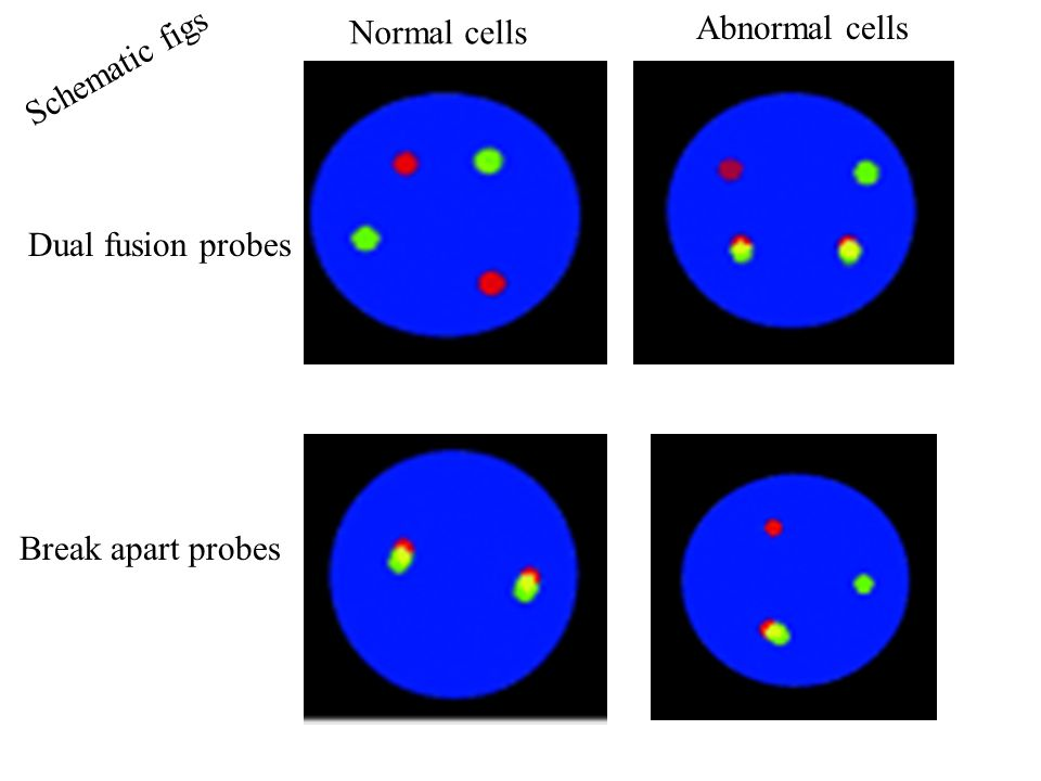 Normal cells Abnormal cells Schematic figs Dual fusion probes Break apart probes