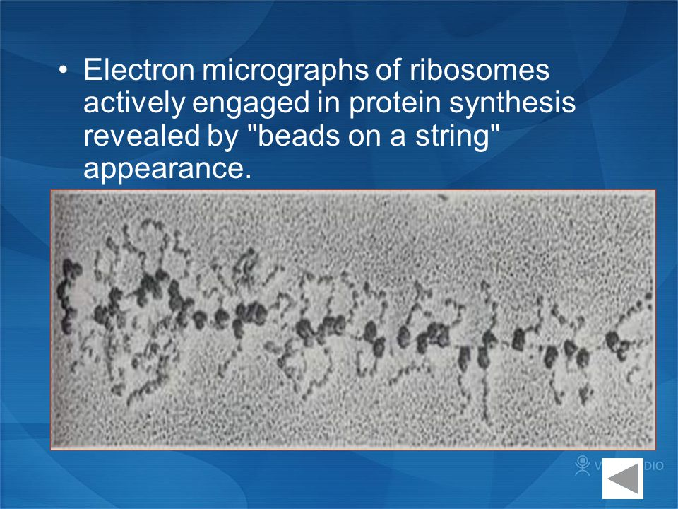 Electron micrographs of ribosomes actively engaged in protein synthesis revealed by beads on a string appearance.