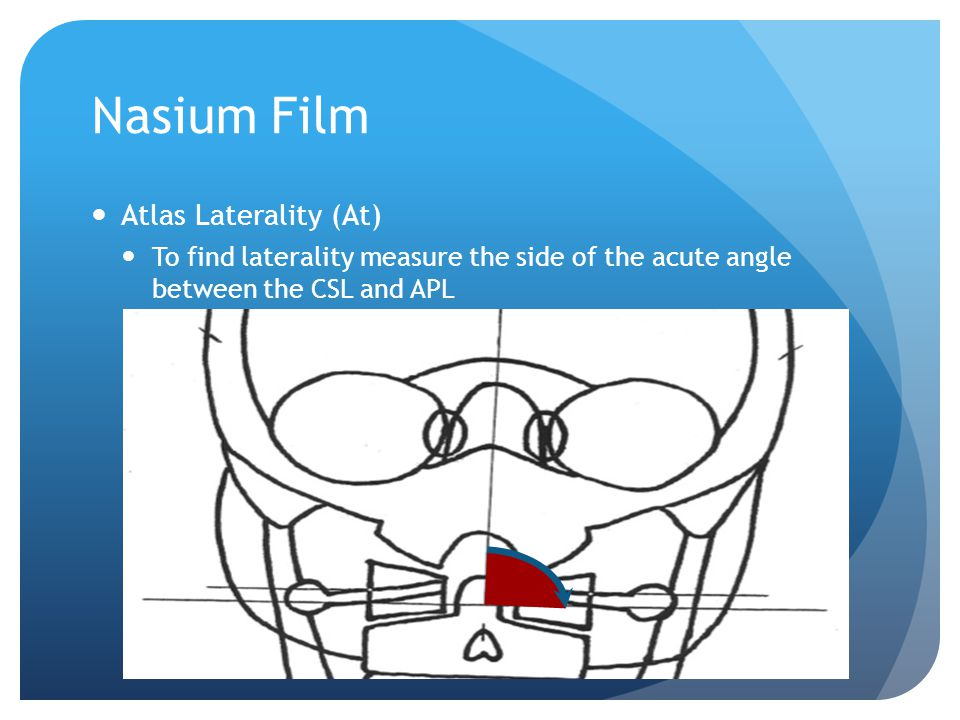 Nasium Film Atlas Laterality (At)