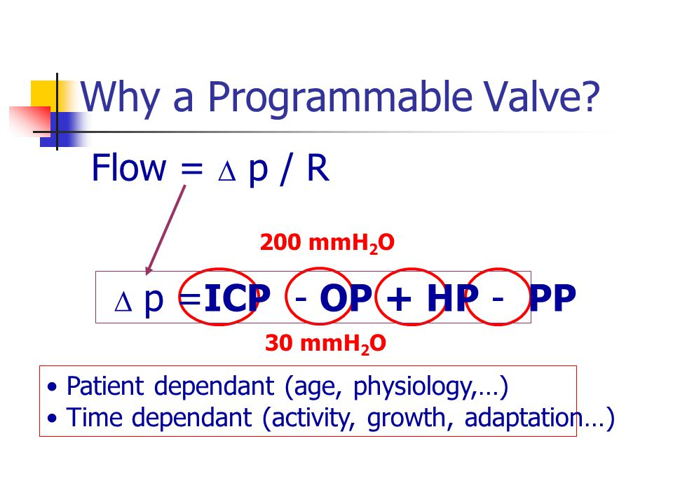Why a Programmable Valve