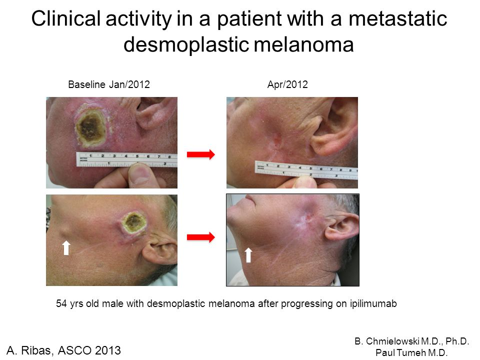 Clinical activity in a patient with a metastatic desmoplastic melanoma