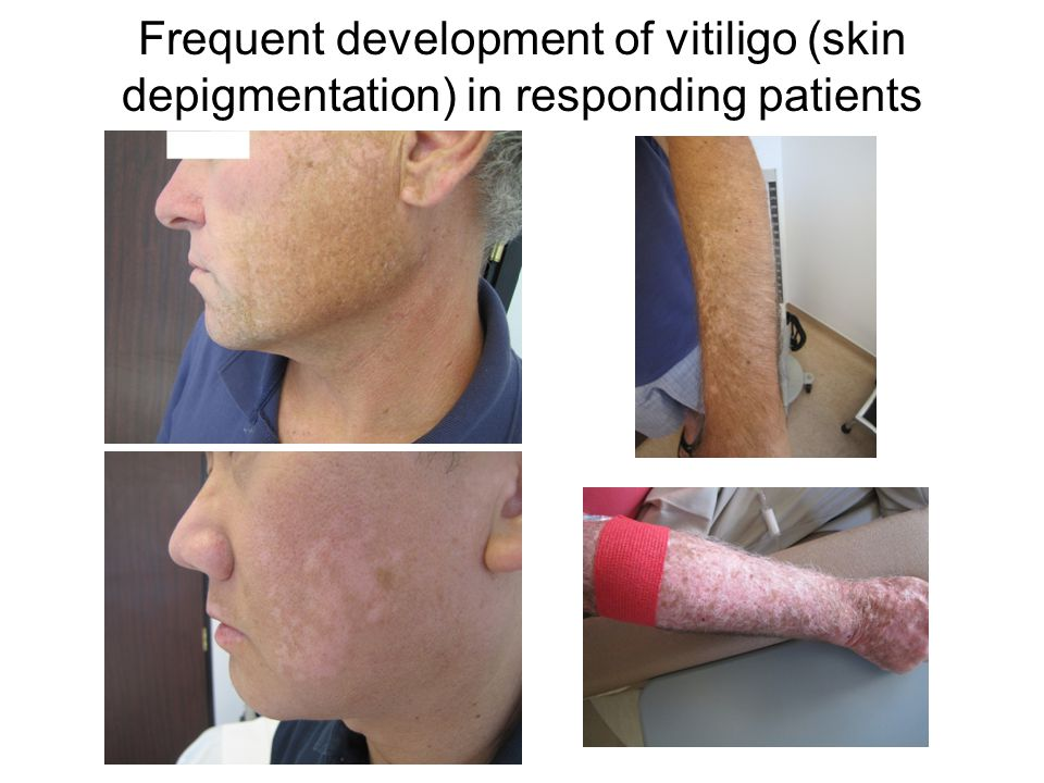 Frequent development of vitiligo (skin depigmentation) in responding patients