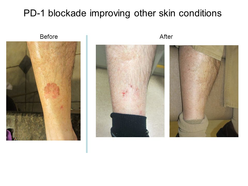 PD-1 blockade improving other skin conditions
