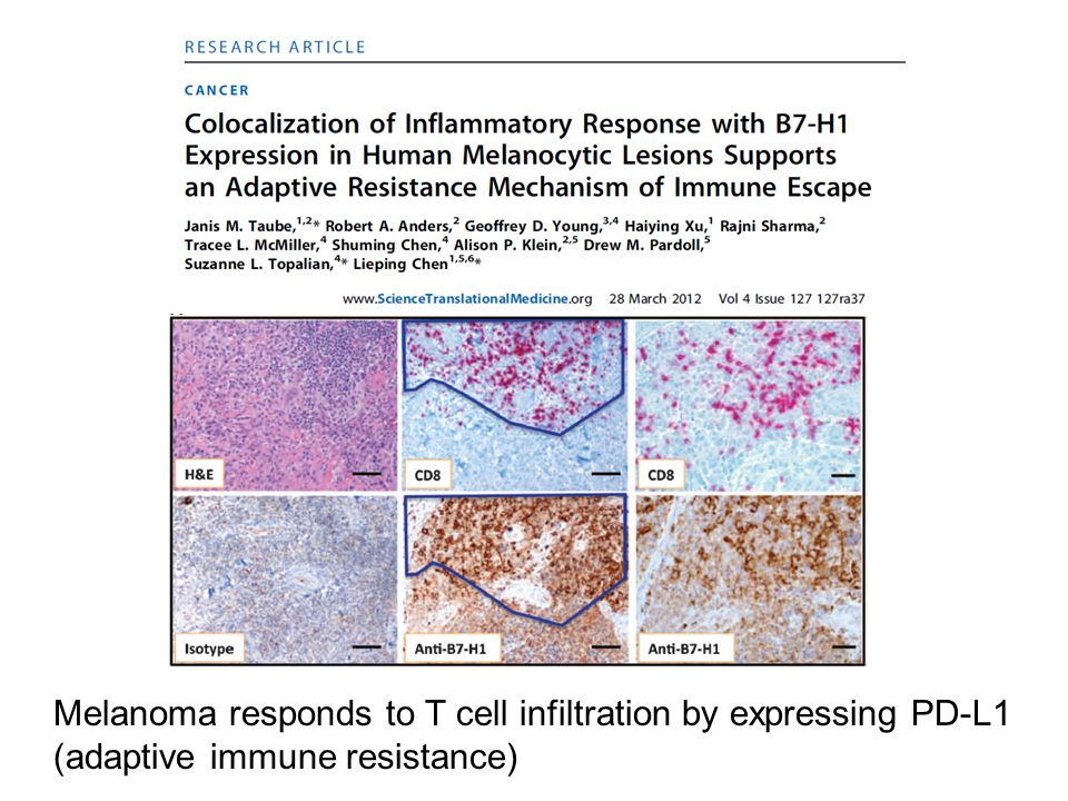 Melanoma responds to T cell infiltration by expressing PD-L1