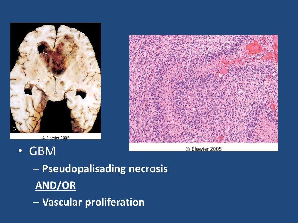 GBM Pseudopalisading necrosis AND/OR Vascular proliferation