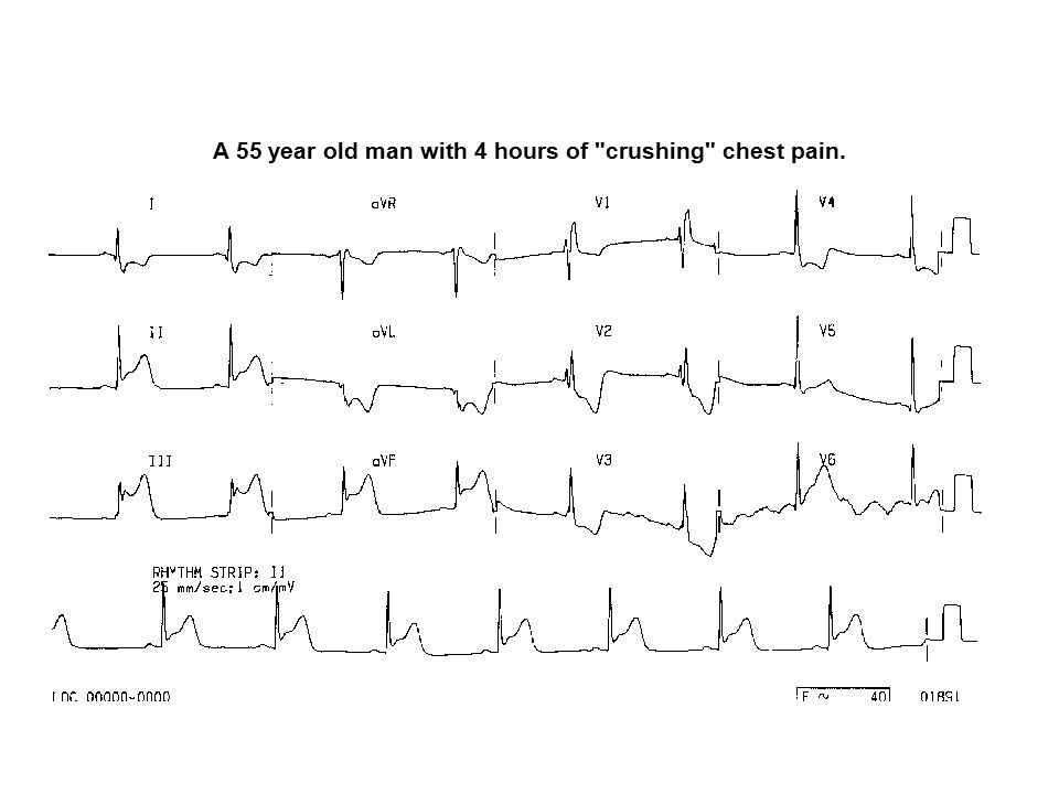 A 55 year old man with 4 hours of crushing chest pain.