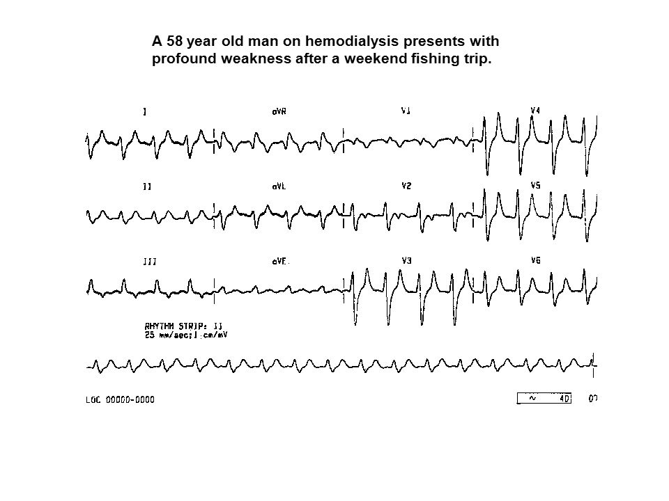 A 58 year old man on hemodialysis presents with