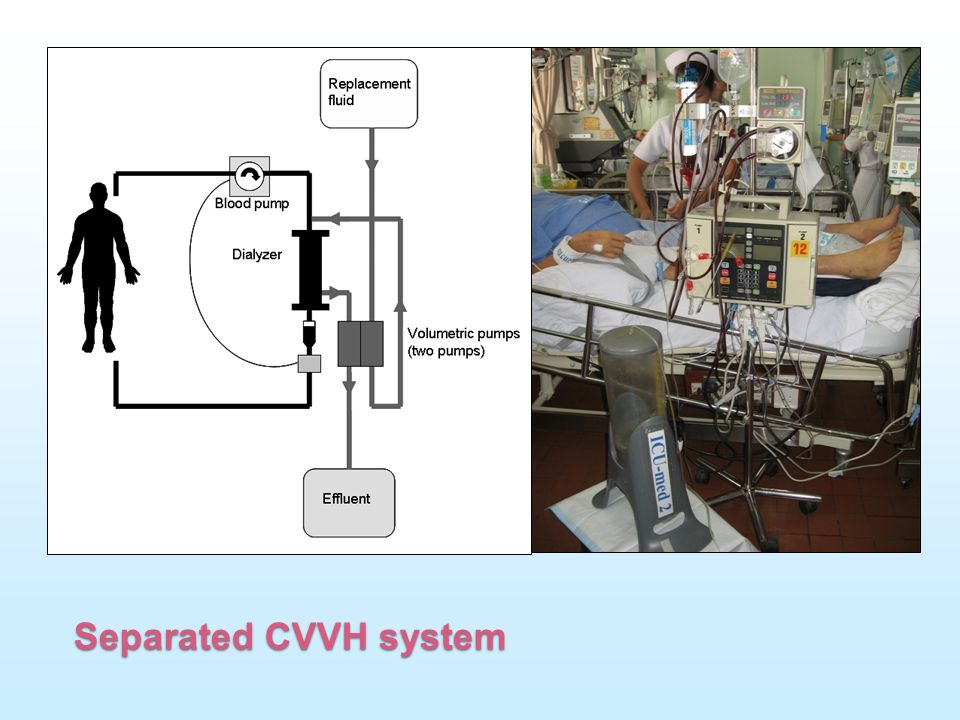 This picture demonstrate the separated CRRT system