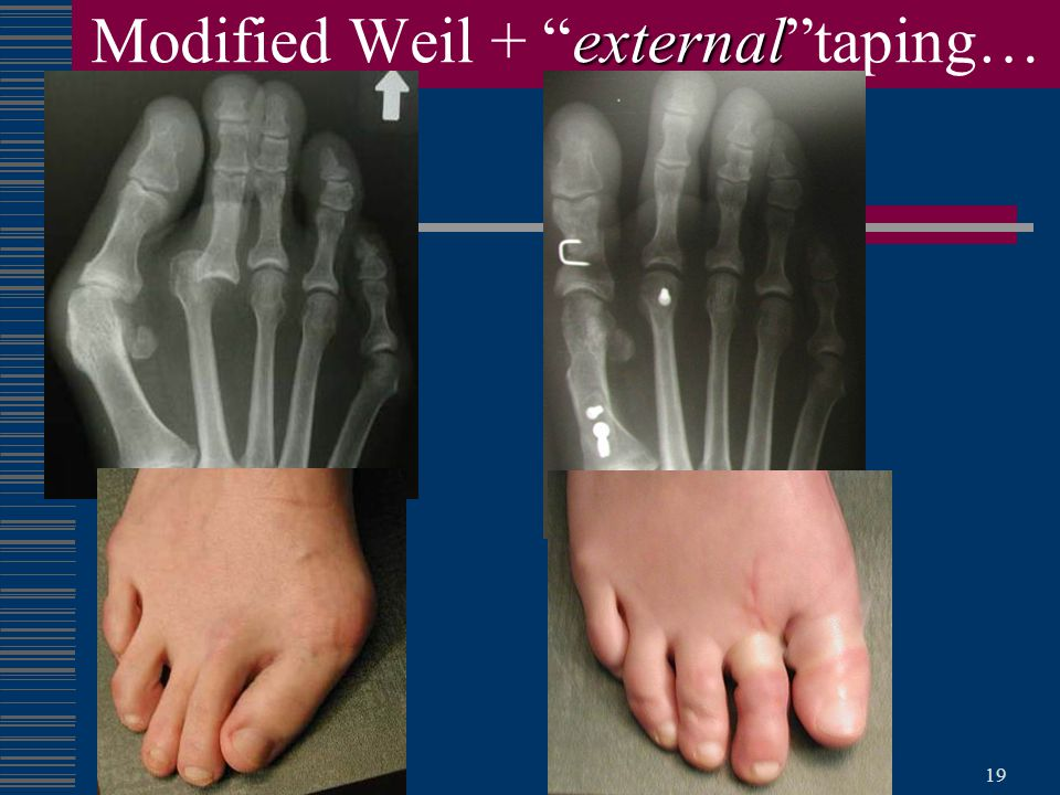Modified Weil + external taping…