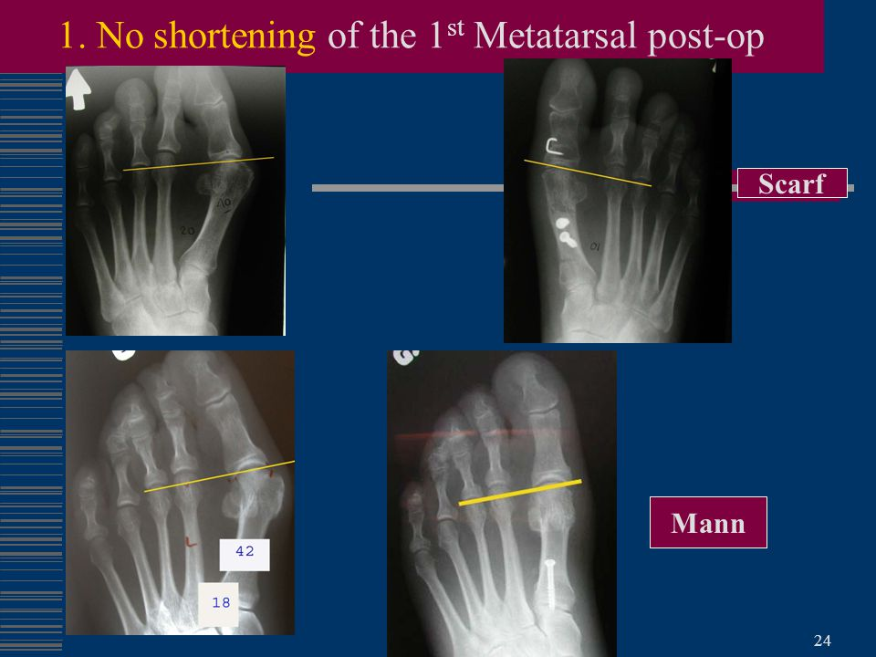 1. No shortening of the 1st Metatarsal post-op