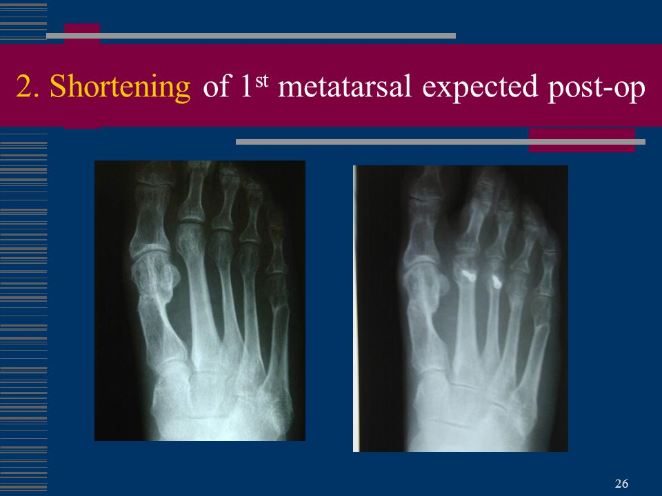 2. Shortening of 1st metatarsal expected post-op