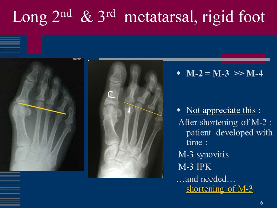 Long 2nd & 3rd metatarsal, rigid foot