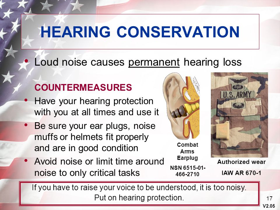HEARING CONSERVATION Loud noise causes permanent hearing loss
