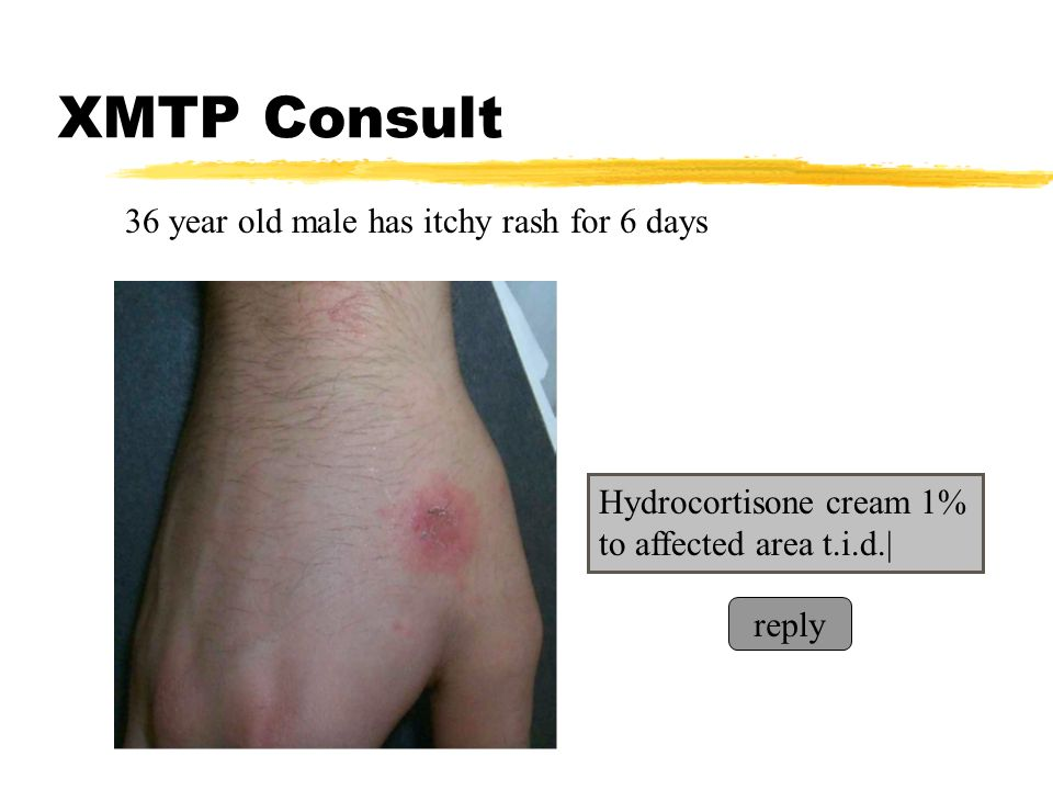 XMTP Consult 36 year old male has itchy rash for 6 days