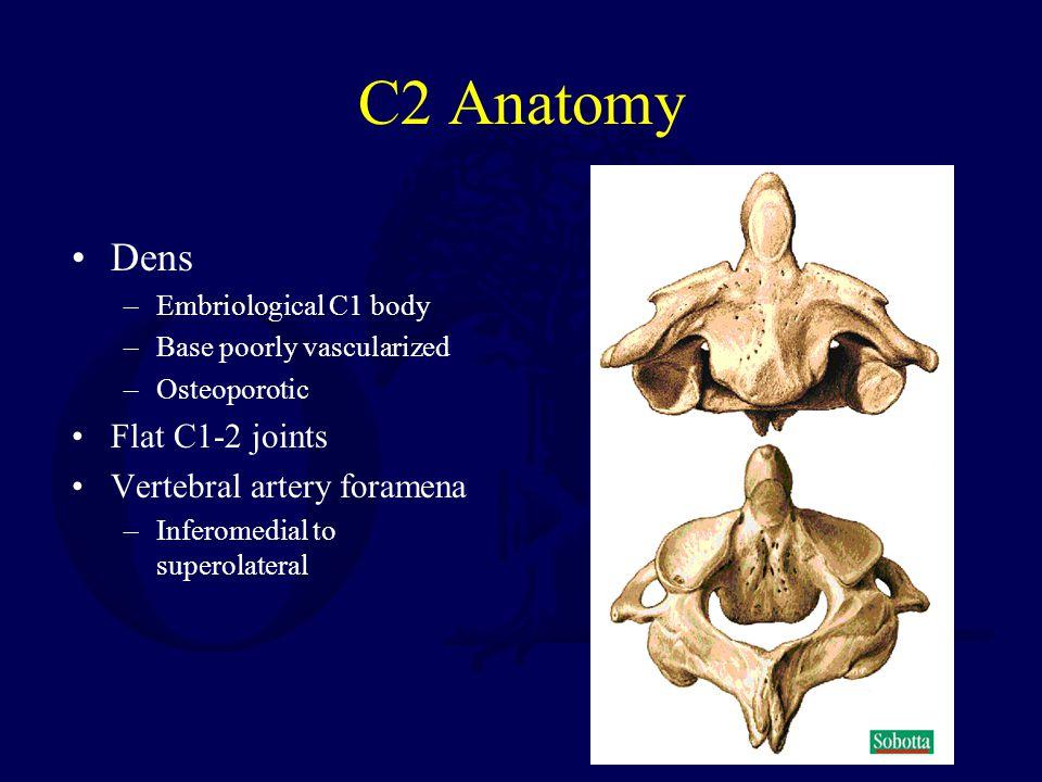 Upper Cervical Spine Fractures Ppt Video Online Download