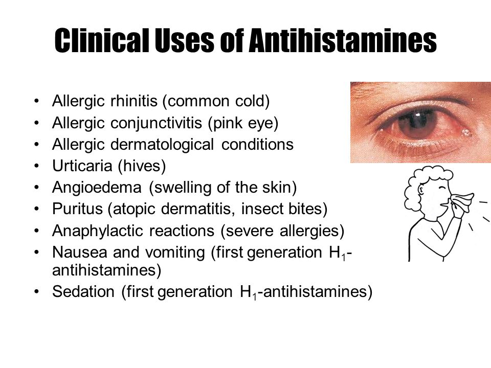 Histamine and Antihistamines - ppt video online download