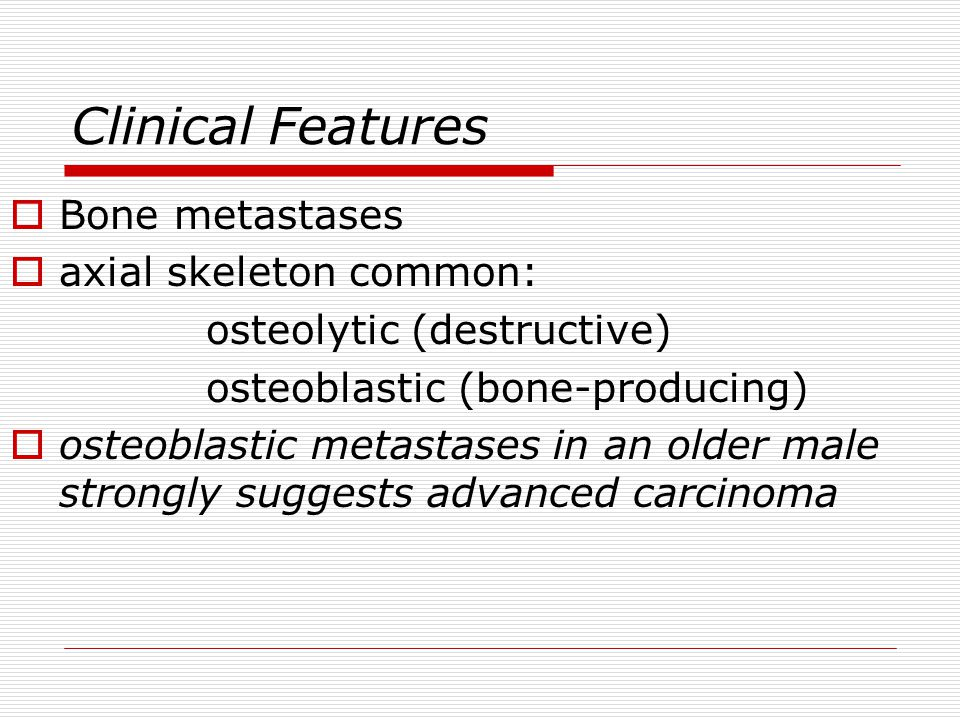 Clinical Features Bone metastases axial skeleton common: