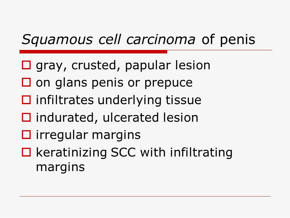 Squamous cell carcinoma of penis