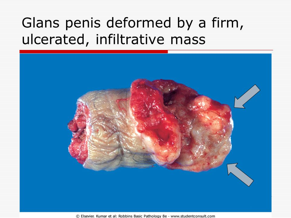 Glans penis deformed by a firm, ulcerated, infiltrative mass