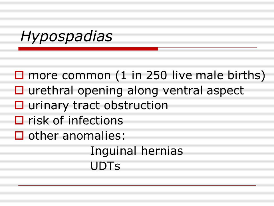 Hypospadias more common (1 in 250 live male births)