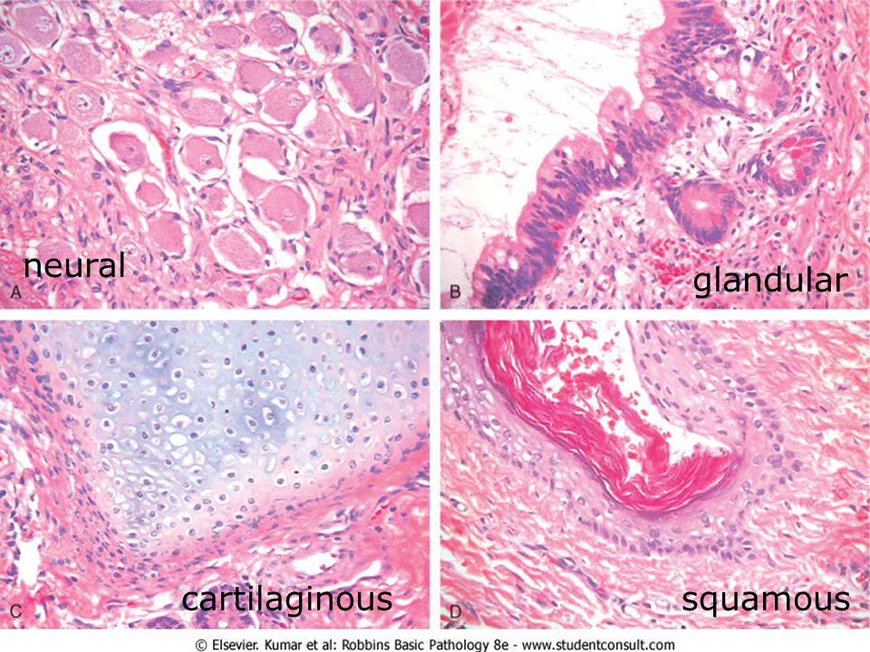 neural glandular cartilaginous squamous