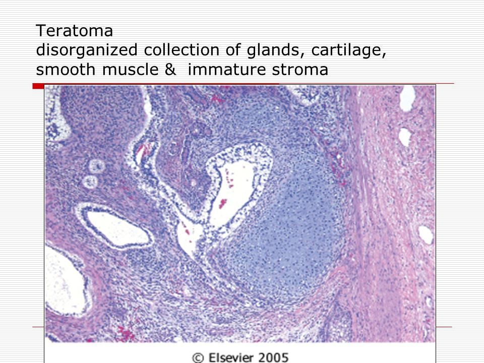 Teratoma disorganized collection of glands, cartilage, smooth muscle & immature stroma