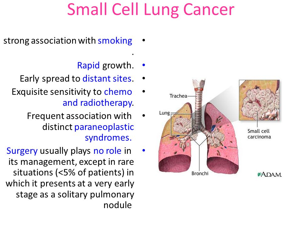 Small Cell Lung Cancer strong association with smoking . Rapid growth.
