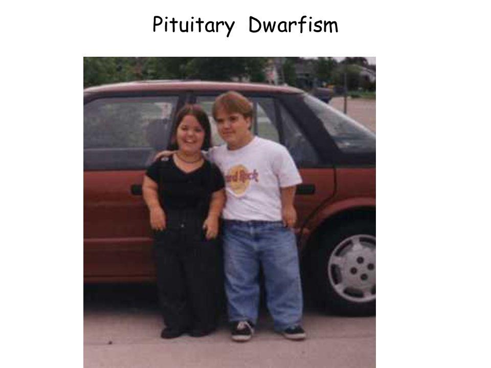 47 pituitary dwarfism