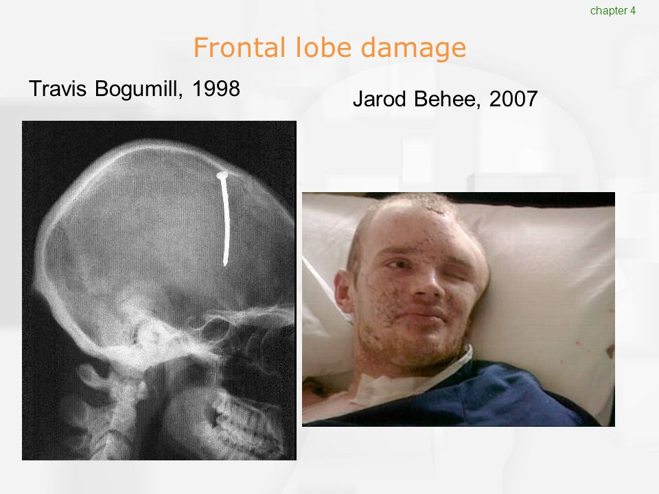 frontal lobe damage case study Yet, through this case report, we highlight similarities (and differences) with medial temporal lobe memory disorders and the role of frontal lobe dysfunction in its retrograde amnesia keywords: amnestic disorder, frontal lobe, diencephalic.