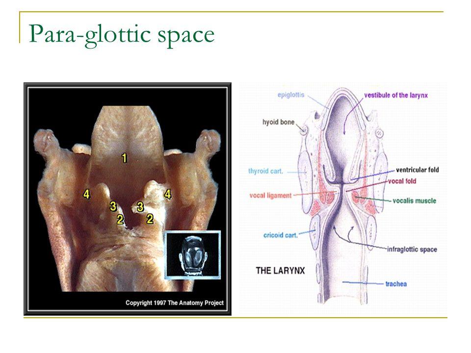 Anatomy of Larynx. - ppt video online download