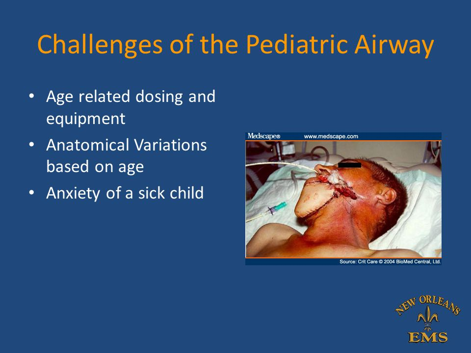 New Orleans Ems Airway Lecture Series Lecture 4 The Pediatric