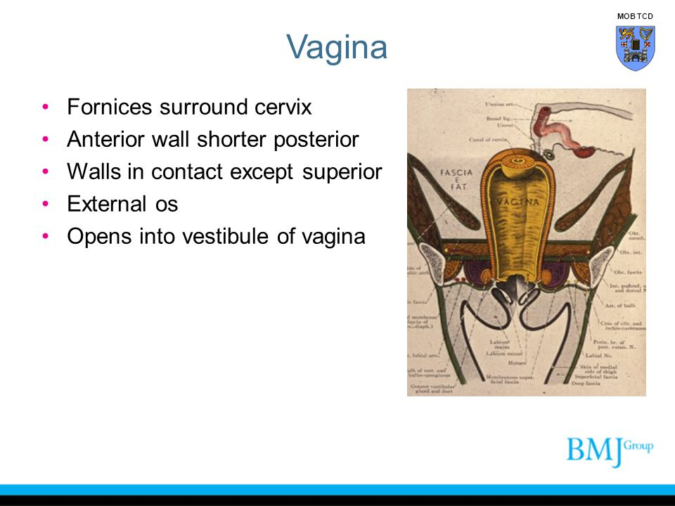 Vagina Fornices surround cervix Anterior wall shorter posterior