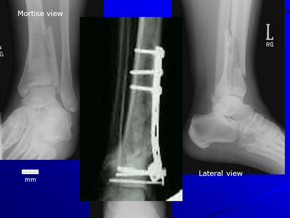 X-Ray Rounds: (Plain) Radiographic Evaluation of the Ankle - ppt ...