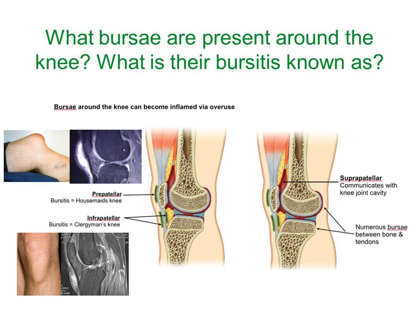 Anatomy of the Knee, Lower Leg and Foot - ppt video online download
