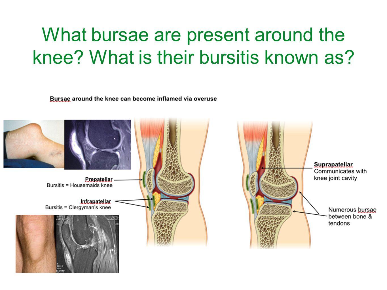 Bursa Knee Anatomy Images - human body anatomy