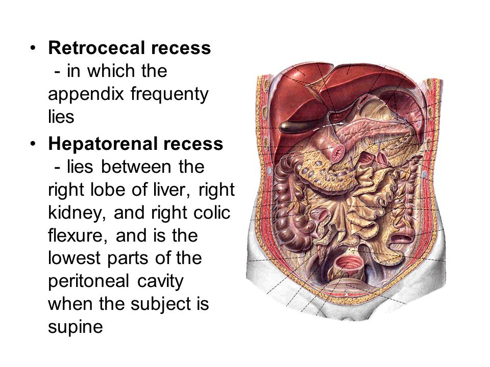 Retrocecal recess -in which the appendix frequenty lies