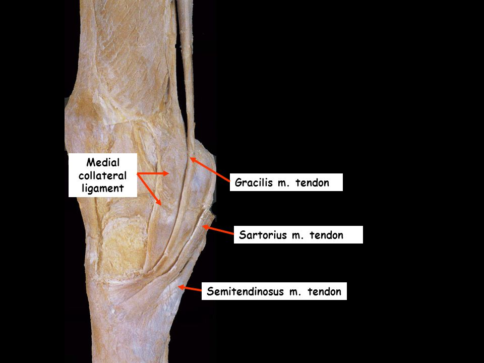 Dissection Of The Knee Joint Ppt Video Online Download