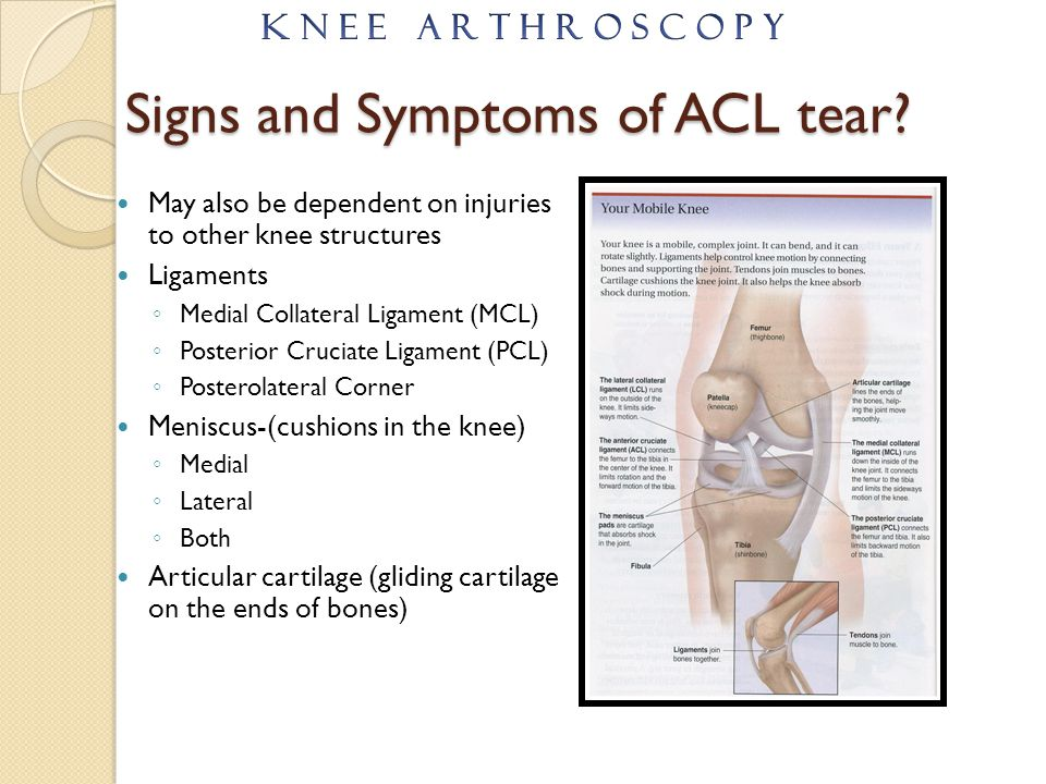 Anterior Cruciate Ligament Reconstruction - ppt video online