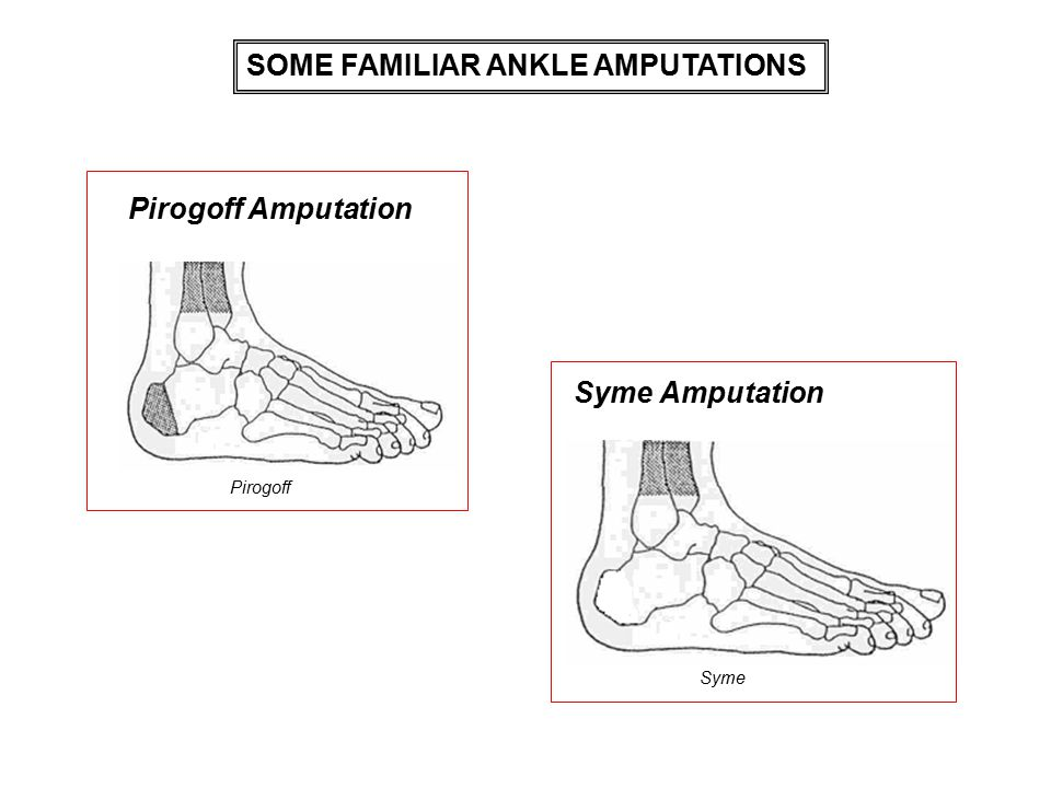 SOME FAMILIAR ANKLE AMPUTATIONS