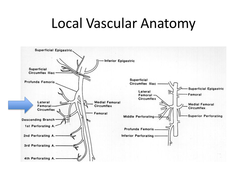 Local Vascular Anatomy