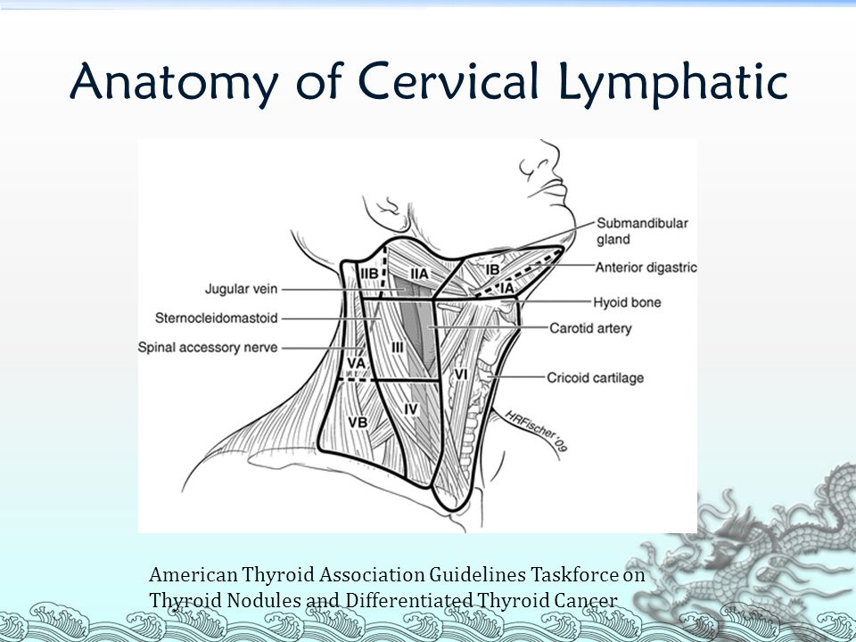 Lateral neck dissection for papillary thyroid cancer - ppt video ...