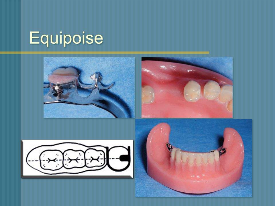 Alternatives To Clasp Retained Removable Partial Dentures