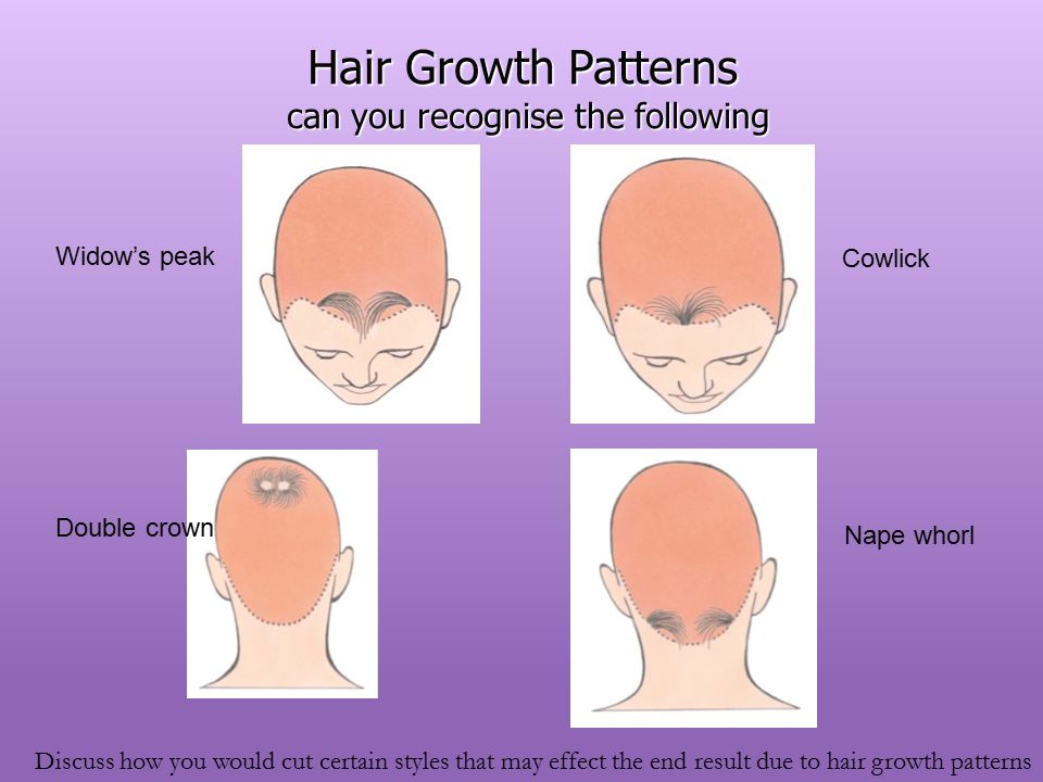 Unit 40 Cutting Women's Hair Ppt Video Online Download Simple Hair Growth Patterns