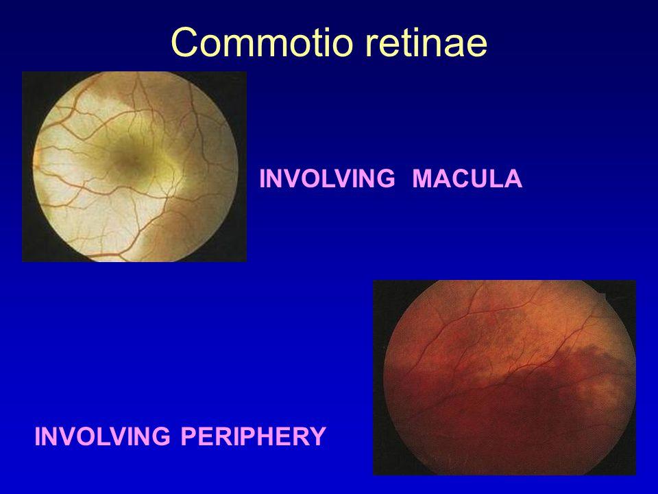 52 Commotio Retinae INVOLVING MACULA PERIPHERY
