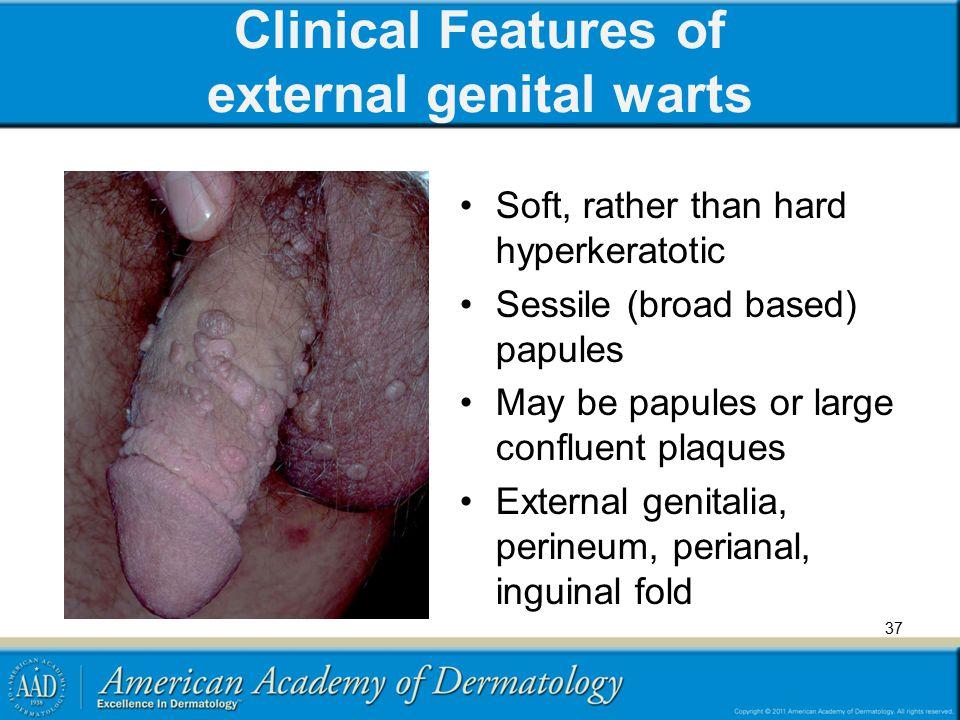 hpv warts hard or soft