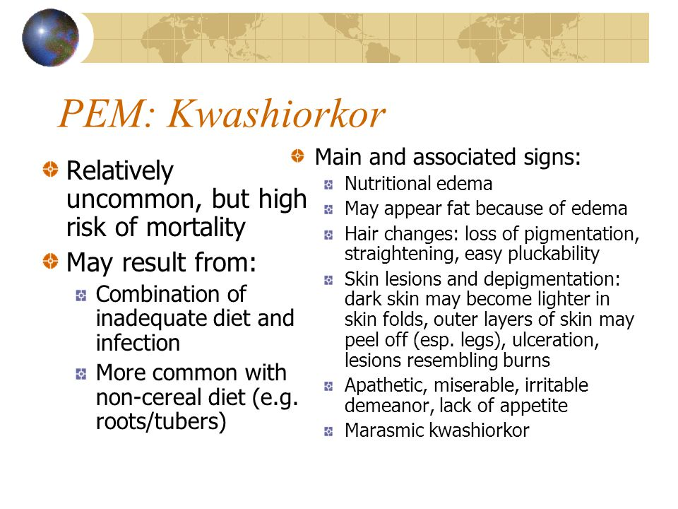 PEM: Kwashiorkor Relatively uncommon, but high risk of mortality