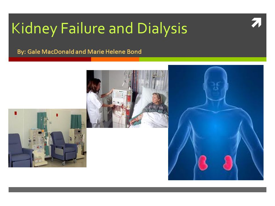 dialysis encephalopathy a complication of chronic renal Dialysis dysequilibrium syndrome is a common neurologic complication seen in dialysis patients that is characterized by weakness, dizziness, headache, and in severe cases, mental status changes the diagnosis is one of exclusion a prime characteristic of this syndrome is that it is nonfocal.